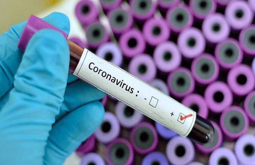 Coronavirus, variante brasiliana: tre casi nell'Aquilano