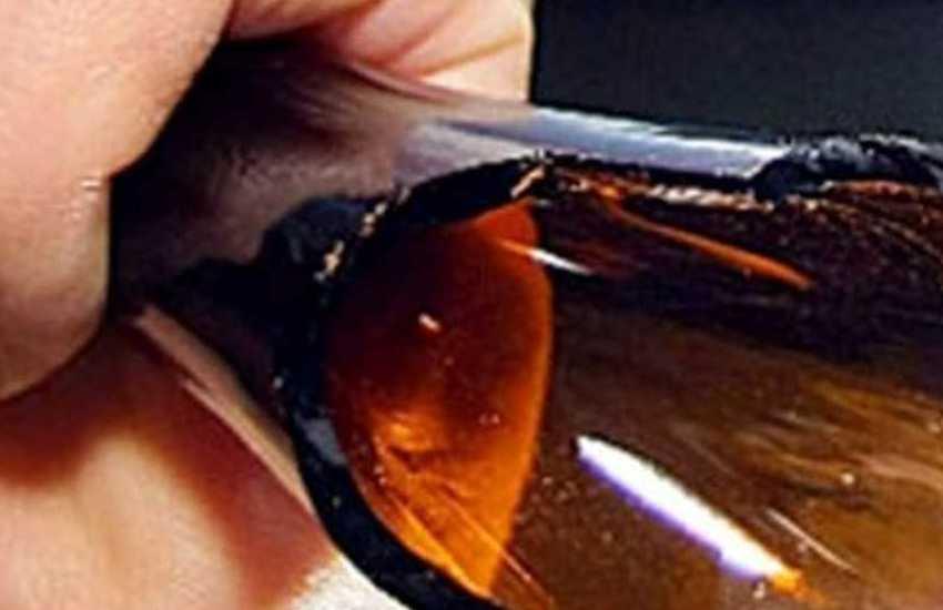 Padova, 60enne aggredito con una bottigliata: tentata rapina