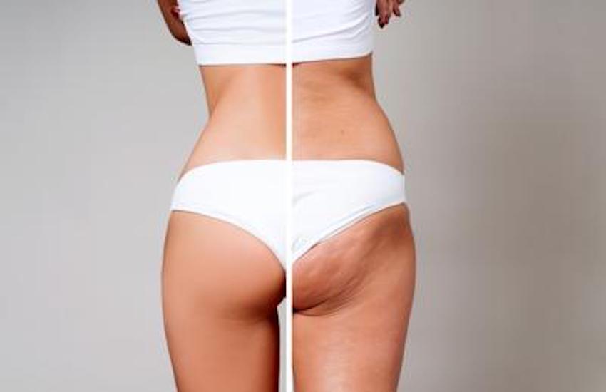 Come eliminare la cellulite: consigli per farlo
